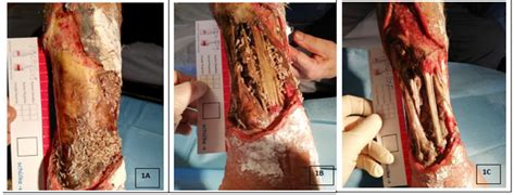 JCM   Free Full-Text   Effectiveness of Chronic Wound